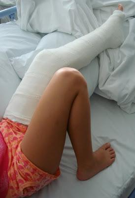 Broken leg blog